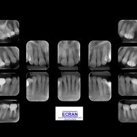 periapical3